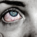 sintomi-cannabis